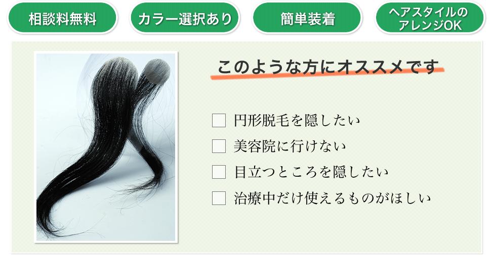 脱毛 症 治療 円形
